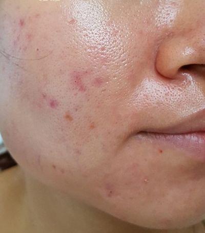kem trị mụn hiệu quả cho da dầu mụn