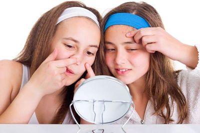 kem trị mụn hiệu quả cho da tuổi dậy thì